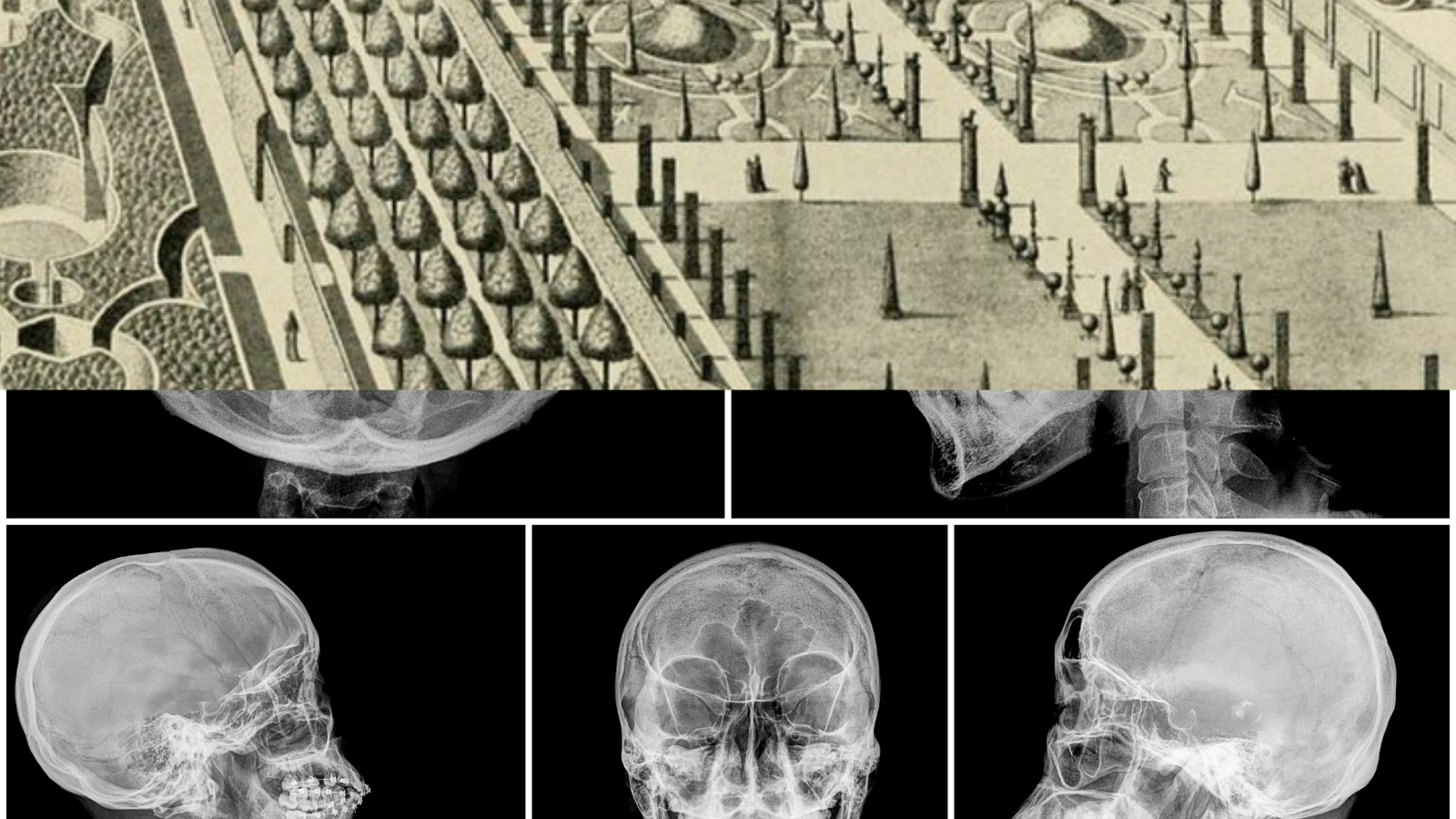 The top half of this collaged image is a black & white drawing of a large and orderly garden, and the bottom half is an x-ray of a human skull from multiple angles.